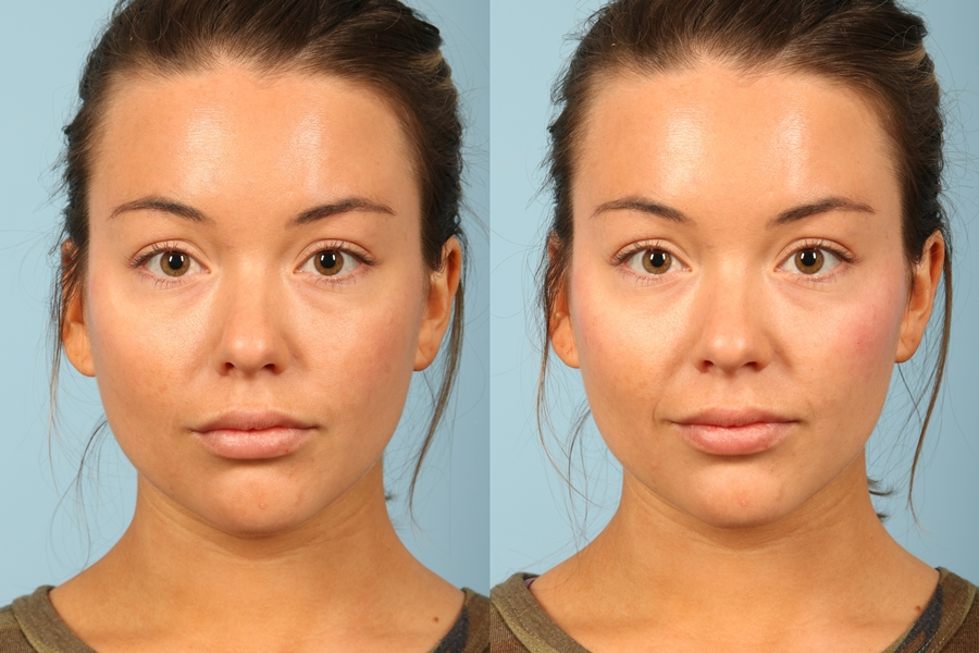 Contouring with Makeup or with Fillers?