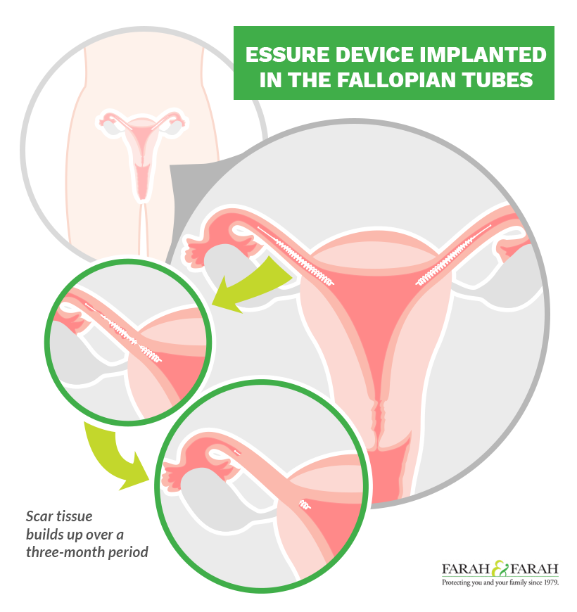 What Is Essure and How Does It Work?