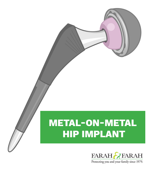 Metal-on-Metal Implants