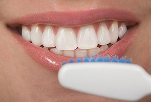 Dental Veneers Restore Your Smile