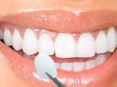 dental veneers in Sunrise, FL