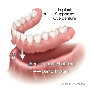 Implant-SupportedDenturesCouldImproveYourBoneHealth