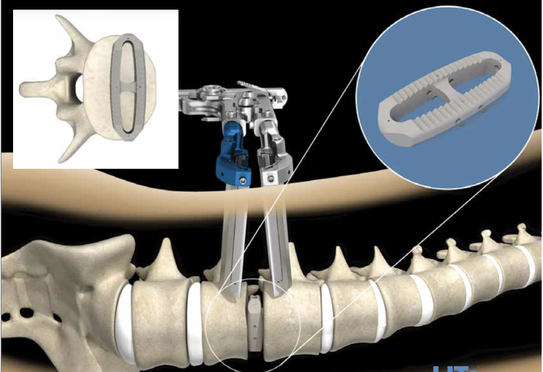 Extreme-Lateral Lumbar Interbody Fusion