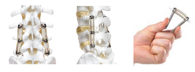 Posterior Lumbar Dynamic Stabilization