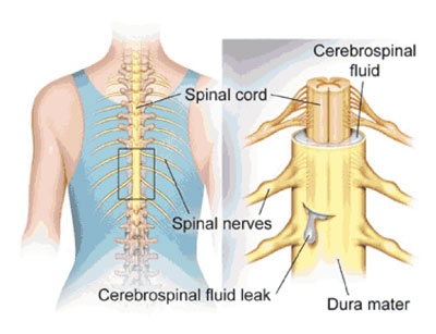 Understanding the Risks of Spine Surgery | Dr  Paul Jeffords, MD
