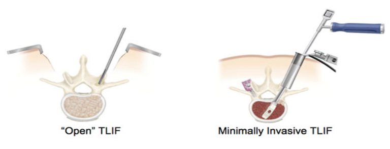 Minimally-Invasive Surgical (MIS) TLIF