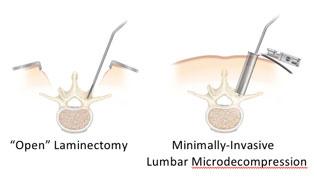 Minimally-Invasive Lumbar Microdecompression