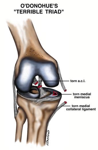 ACL Tears | Pinnacle Orthopaedics