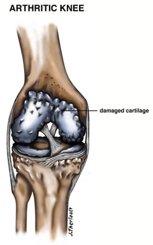 Arthritic Knee