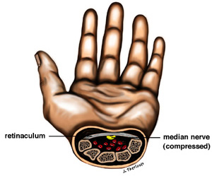 carpal tunnel syndrome image of hand