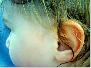 Is it colic or something more serious? Are they just trying to get out of going to school today? Familiarize yourself with these ear infection symptoms.