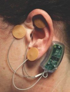 The device attaches to the ear.
