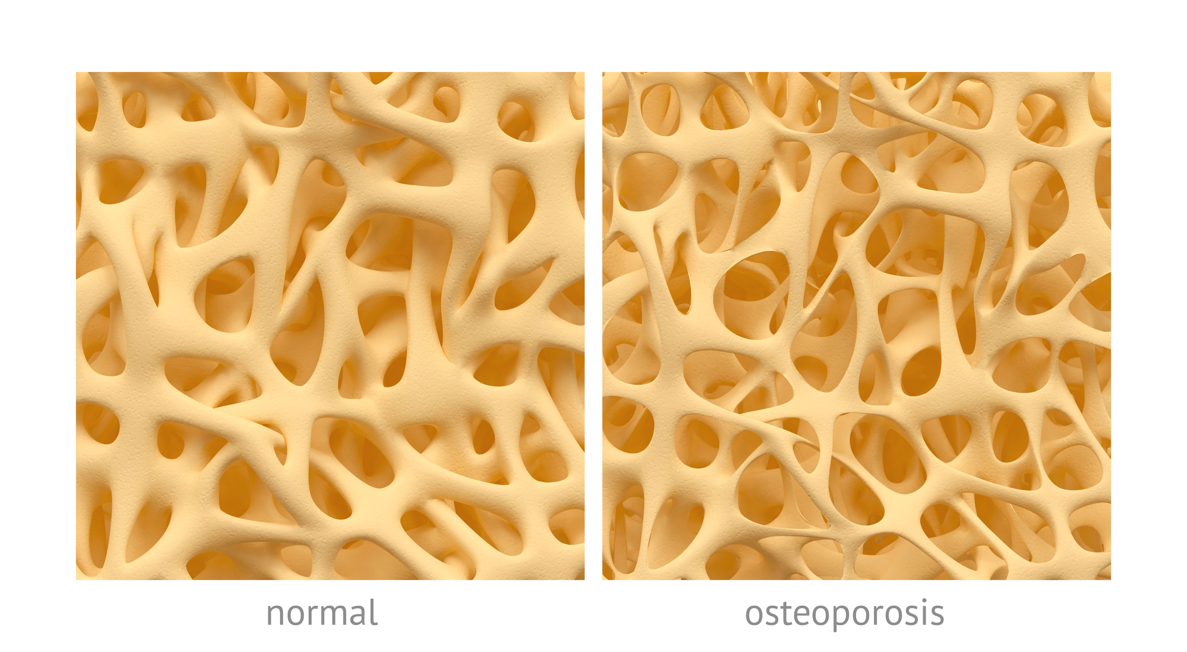 RSC Osteoporosis Spine Fractures