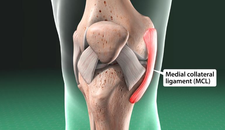 Medial Collateral Ligament (MCL) Sprain of the Knee
